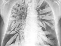 smoke cannabis lungs xray