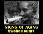 swollen joints sign of aging